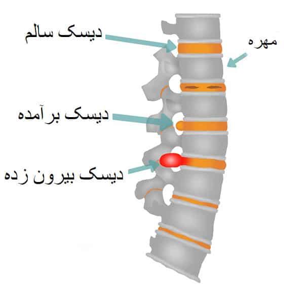 ورزش-درمانی-برای-کمر-درد-و-سیاتیک-علائم-دیسک-کمر-عوامل-ایجاد-و-درمان-آن