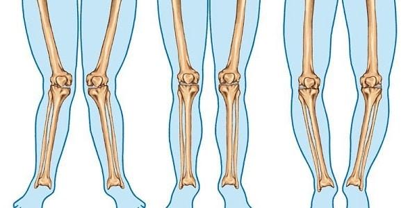 ورزش پیلاتس برای درمان پای پرانتزی