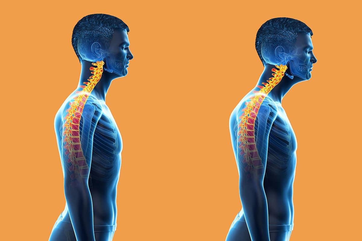 حرکات اصلاحی گردن رو به جلو