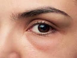 راه های درمان پف چشم