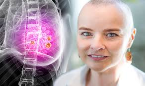 انواع روشهای درمان سرطان سینه