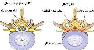دلایل و درمان تنگی کانال نخاعی